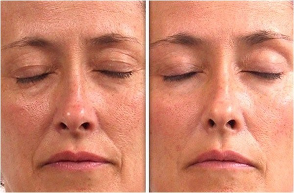 Фото до и после процедуры LPG массажа лица