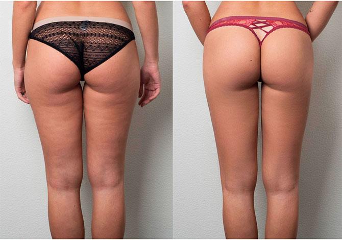 Фото до и после процедур LPG массажа тела