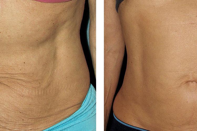 Фото до и после процедуры RF-лифтинга тела